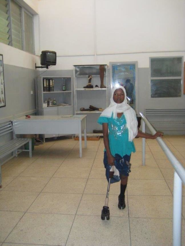 Girl walking with prostetic limb