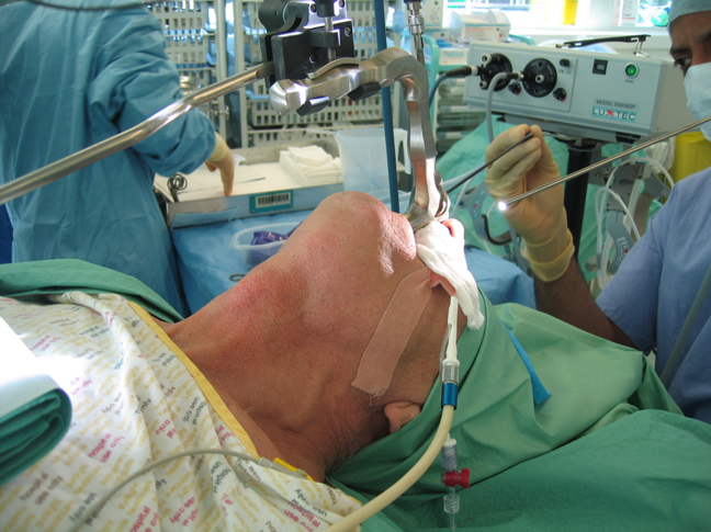 Patient with subglottic jet ventilation catheter in situ, attached to both CO2 sampling line and jet ventilator tubing