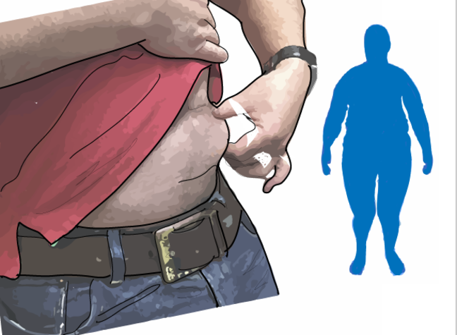 Drawing of person with fat around middle of waist