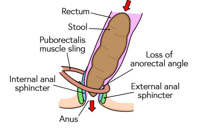 Anal sphincter mechanism during defaecation