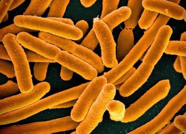 Microscopic photo or E coli. bacteria is orange and rod shaped
