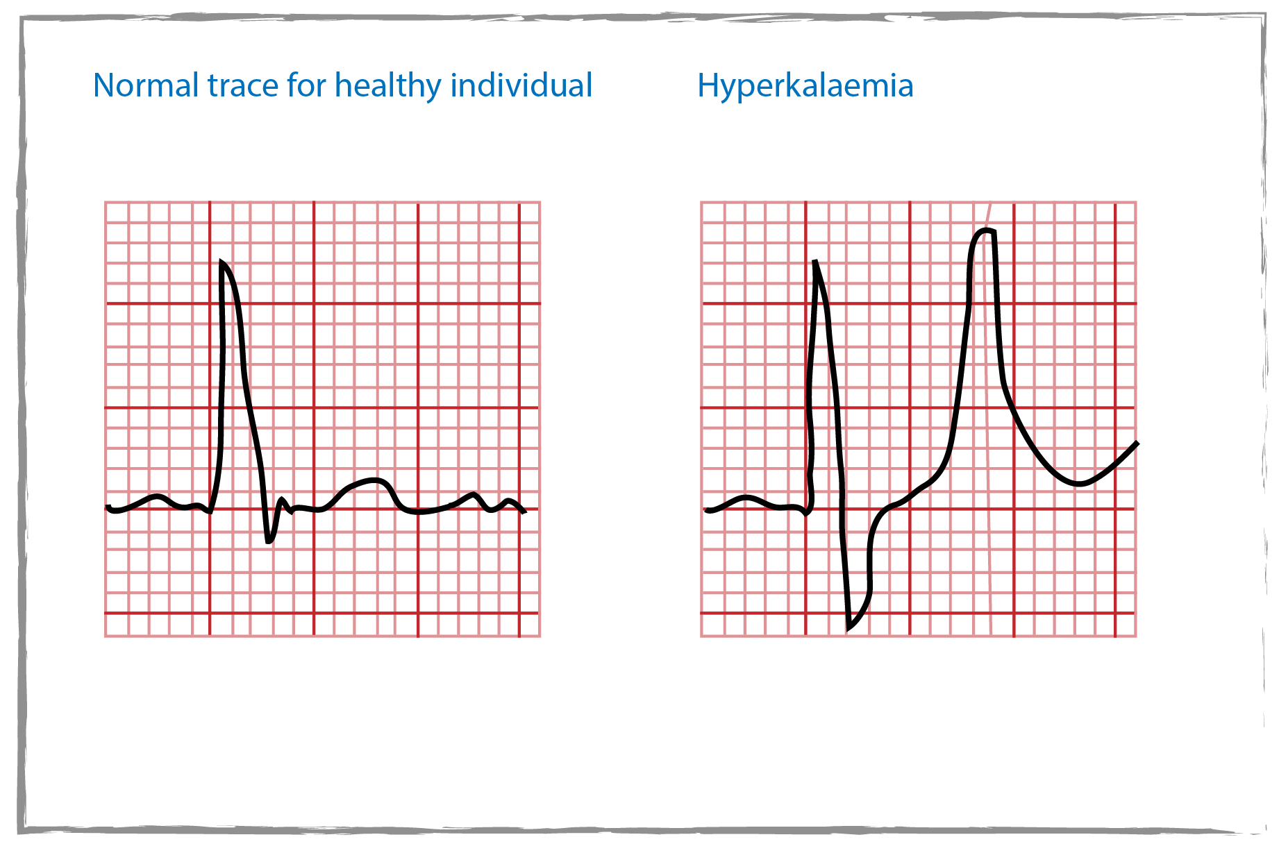 Hyperkalaemia chart showing a normal trace on the left with regular cardiac rhythm and Hyperkalaemia on the right with an abnormal rhythm.