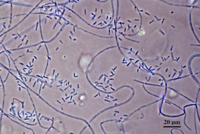 Trichophyton verrucosum under the microscope
