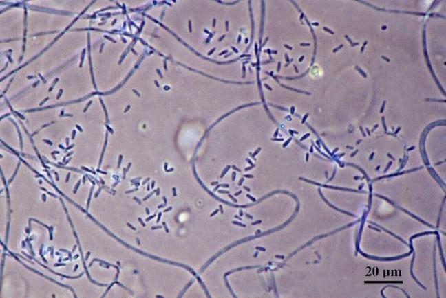 Trichophyton verrucosum under the microscope