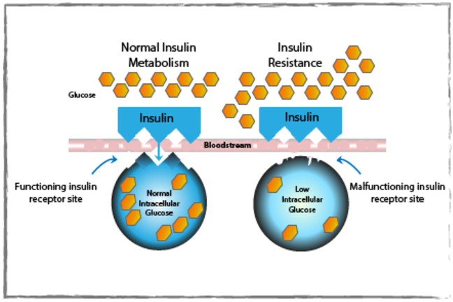 Insulin resistance through malfunctioning insulin receptor site.