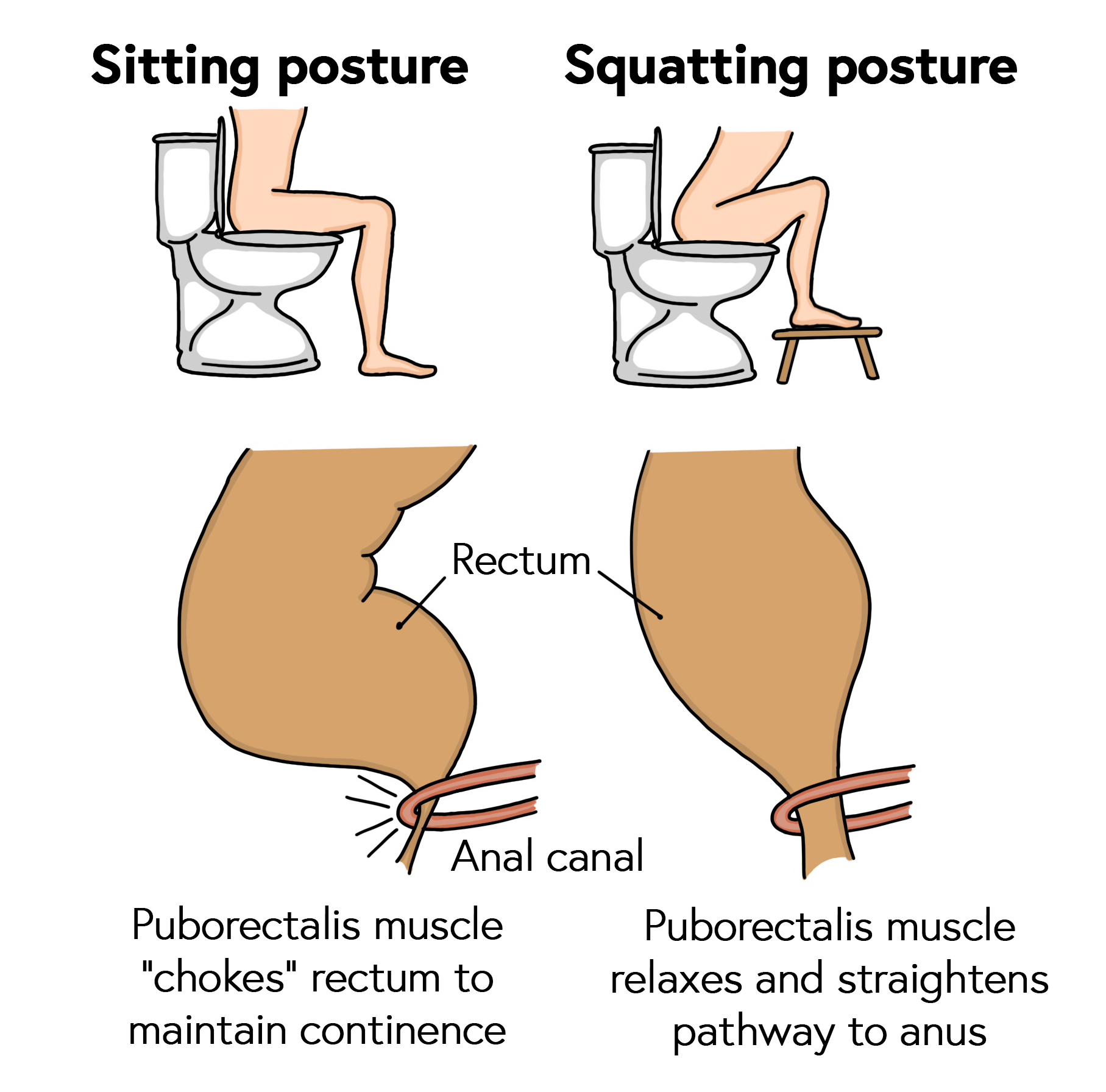 Correct posture on the toilet to relax the puborectalis muscle and straighten pathway to anus