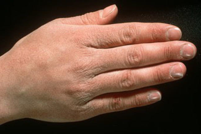 Photograph of a hand with typical manifestations of an irritant contact dermatitis.