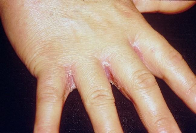 a patient suffering from cutaneous candidosis