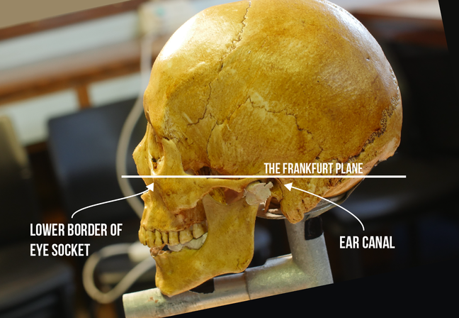 Image showing The 'frankfurt plane' of a skull.