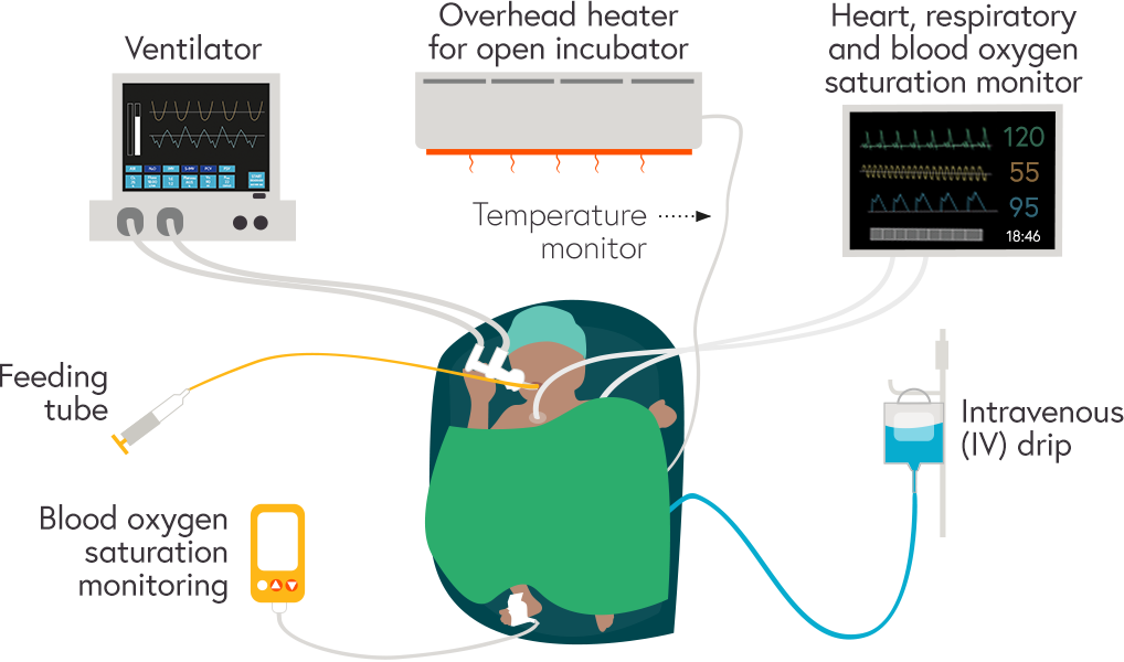 Illustration with a preterm baby in an incubator at the centre of the key pieces of equipment and monitors: Ventilator, overhead heater for open incubator and temperature monitor, heart, respiratory and blood oxygen saturation monitor, IV drip, ambient oxygen analyser and feeding tube
