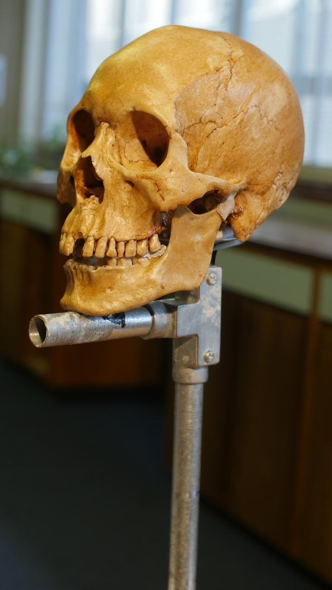 A replica of Mr. X's skull having been placed on a stand, specially made for facial reconstructions. We can see the clay used to attach the mandible (jaw bone) to the skull.