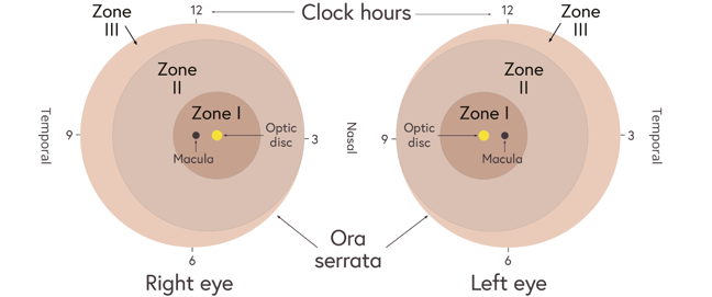 Illustration indicating the zones of ROP for the left and right eyes. Zone 1 is a central circle over the macula & optic disk, zone 2 is a ring around zone 1 extending to the ora serrata at the nasal side & zone 3 is a ring around zone 2 extending to the ora serrata