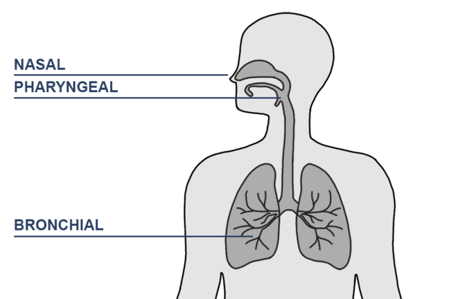 Figure depicting human body with arrows pointing to nose, pharynx and bronchi. Refers to the symptoms caused by rhinovirus.