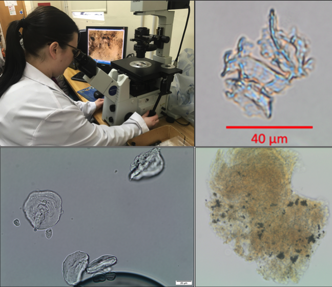 Photos showing: Lisa Mackenzie analysing microscopic particles; heavily boiled plant epidermis; damaged starch granules; traces of microcharcoal or soot in dental calculus