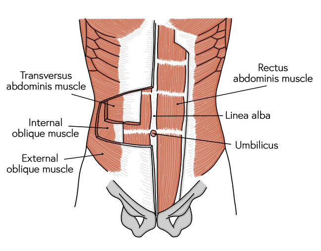 Position of the abdominal muscles