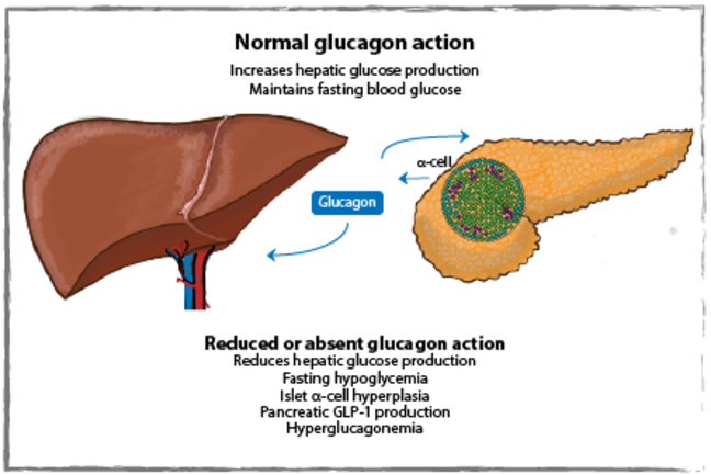 Normal glucagon action and reduced or absent glucagon action diagram