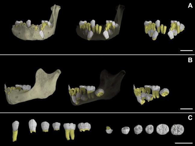 Diagrams of teeth from Tanya's study of Irhoud 3