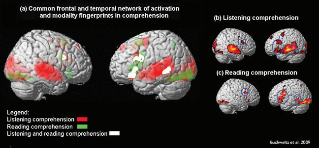 fMRI showing where listening comprehension and reading comprehension increased brain activity occurs in both hemispheres in the brain. Some regions are overlapping, indicated in white.