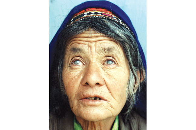 Older woman with bilateral cataracts