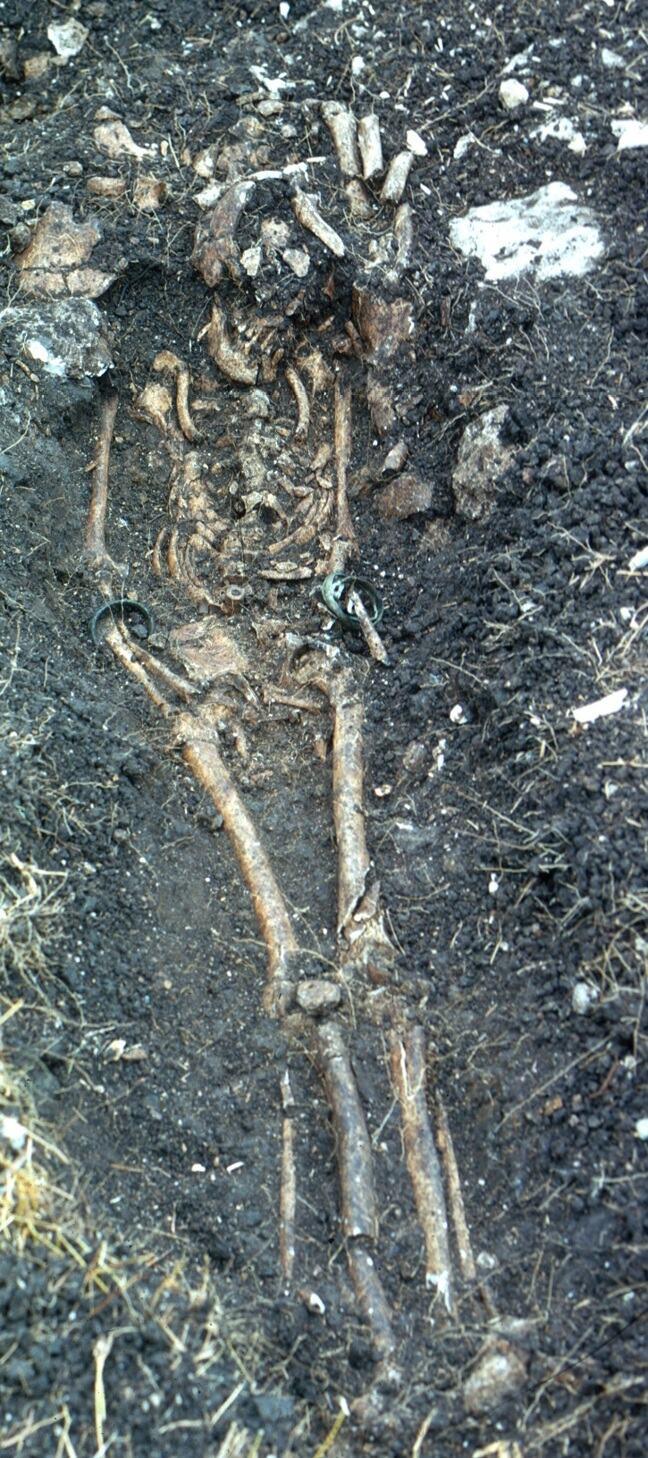 Skeleton and Burial, Newton Plantation Slave Cemetery, Barbados