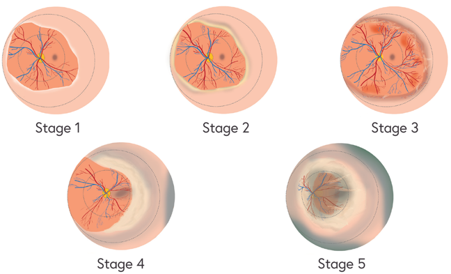 Illustration of the 5 stages of ROP as seen in the retina and described below