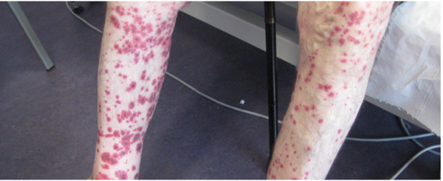 Image of legs with vasculitis-type rash