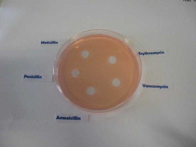 picture of agar plate with labels from left to right: Penicillin, Meticillin, Erythromycin, Vancomycin, Amoxicillin