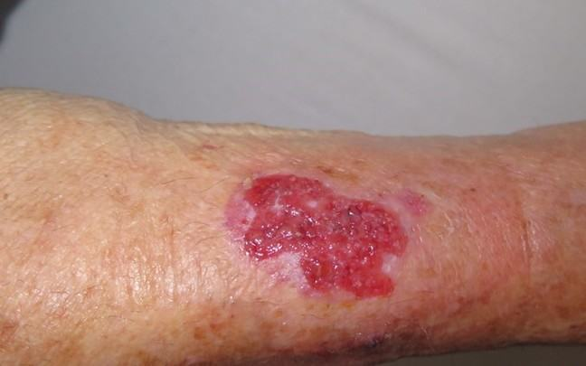 A follow up image of the wound, 3 weeks into treatment.