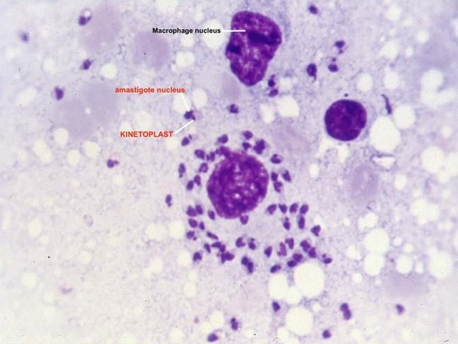 Microscopic view-field of infected macrophages with Leishmania amastigotes under the 100x objective, after Giemsa staining.