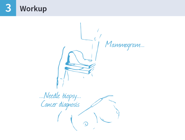 An illustration of a mammogram and a needle biopsy.