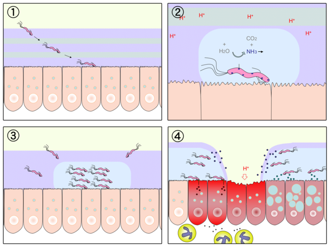 Process of spiral-shaped bacterium causing a stomach ulcer