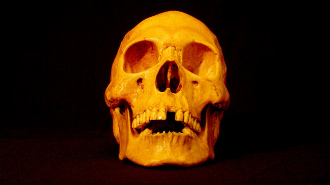 This is a replica of Mr. X's demonstrating significant tooth loss of adult teeth