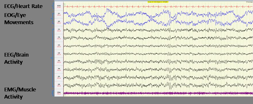 image of brain activity measurements during n1 sleep