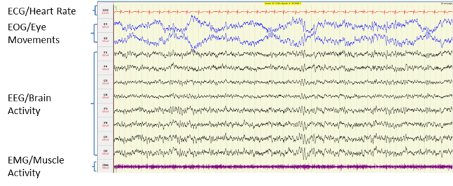 image of brain activity measurements during n1 sleep