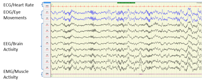 image of brain activity measurements during n2 sleep