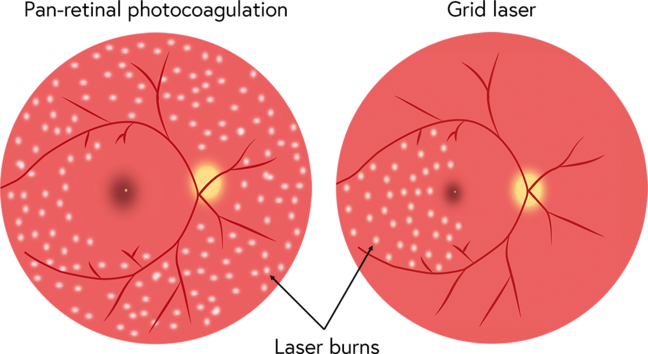Illustration showing how grid laser targets a localised area of the retina but PRP can be used to treat much a much greater area