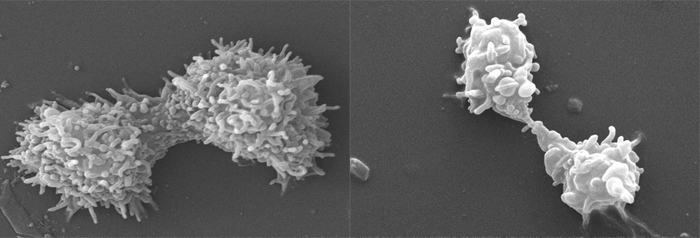 SEM images (in black & white) showing an amoebal cell in the process of dividing into two