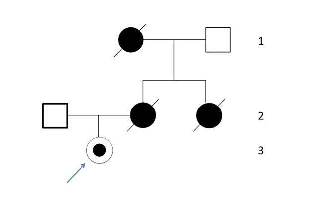An example of Angelina Jolie's family tree in pedigree form