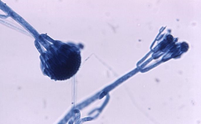 Close up of Penicillium (fungus which produces penicillin)