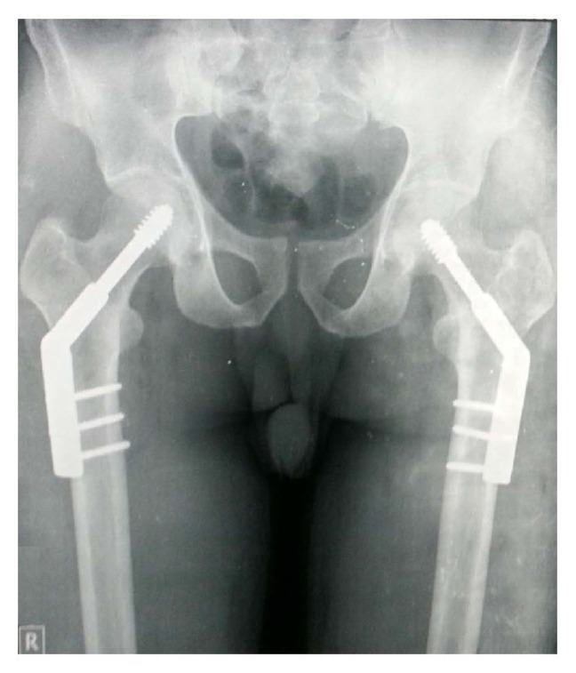 X-ray of bilateral femural neck fracture in a young mason, 6 months after his operation.
