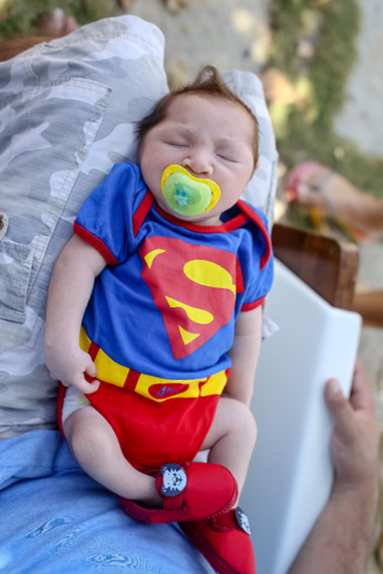 Baby with congenital zika syndrome asleep on mother's knees, wearing a superman outfit