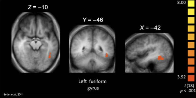 fMRI showing hotspot of increased activity in the parietal lobe relating to physical memory