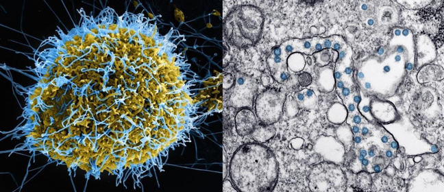 SEM image of Ebola virus particles being released and TEM image of SARS-CoV-2 virus particles