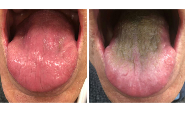 Picture of normal tongue next to one with brown growth on it