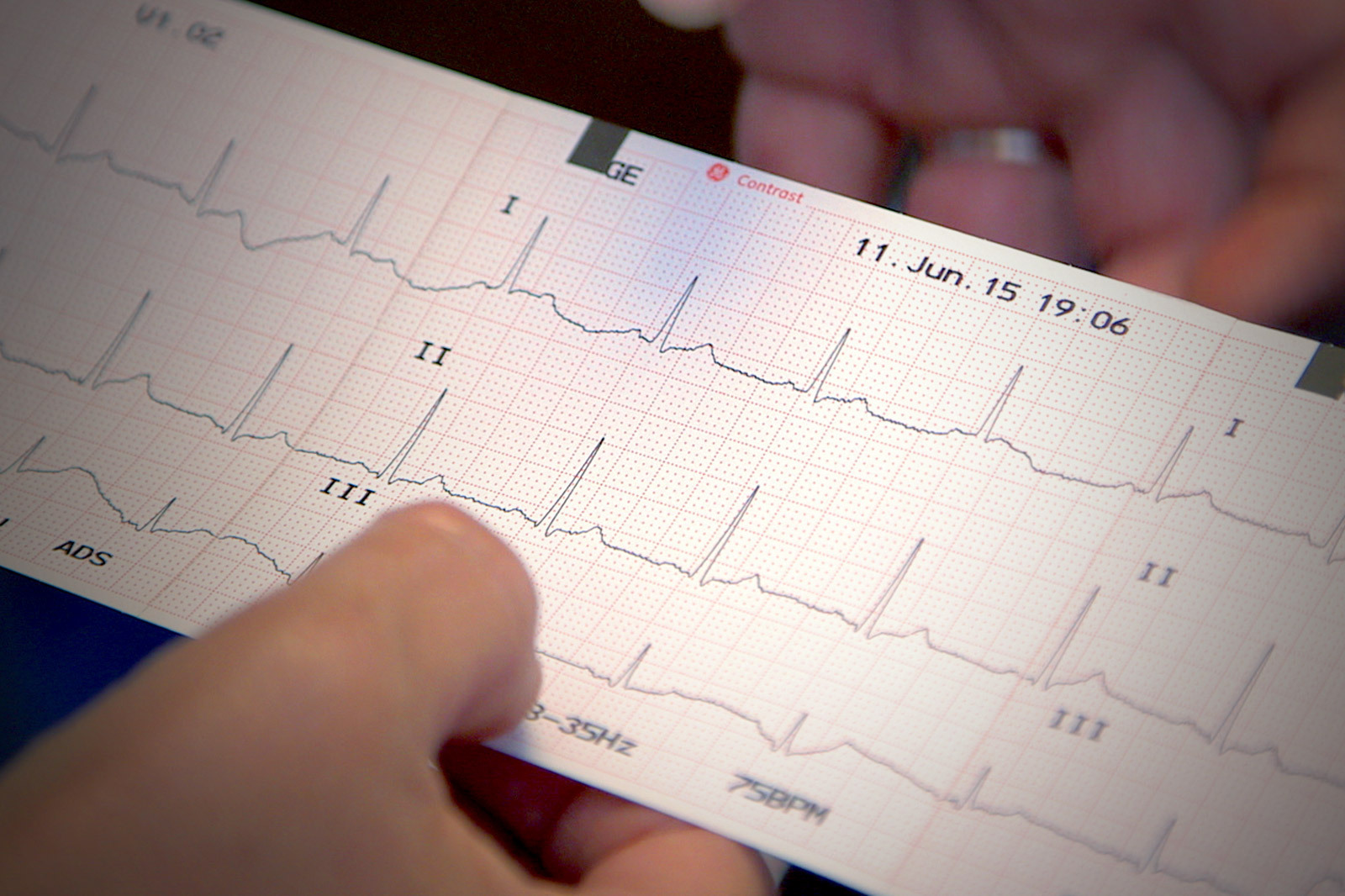 Ecg Assessment Online Course