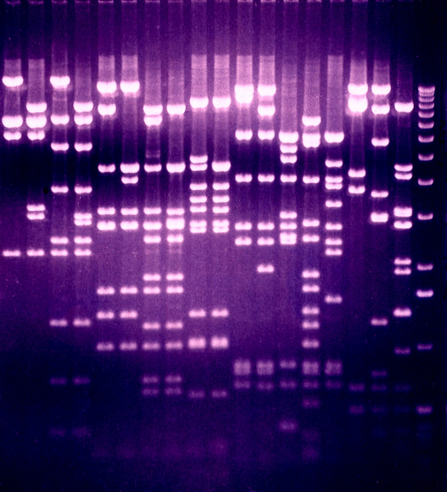 A DNA gel with different length fragments