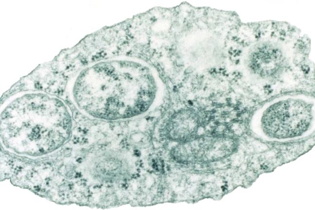 Image of Wolbachia bacterium