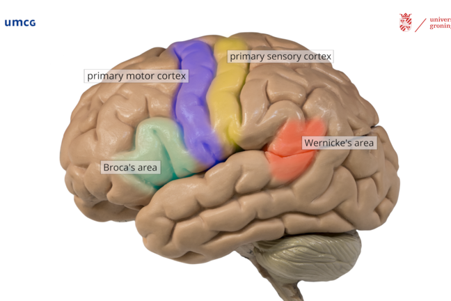 The left hemisphere with crucial regions