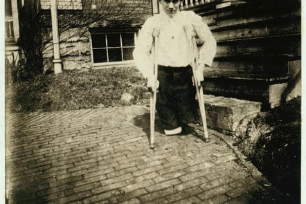 Disabled miner on crutches
