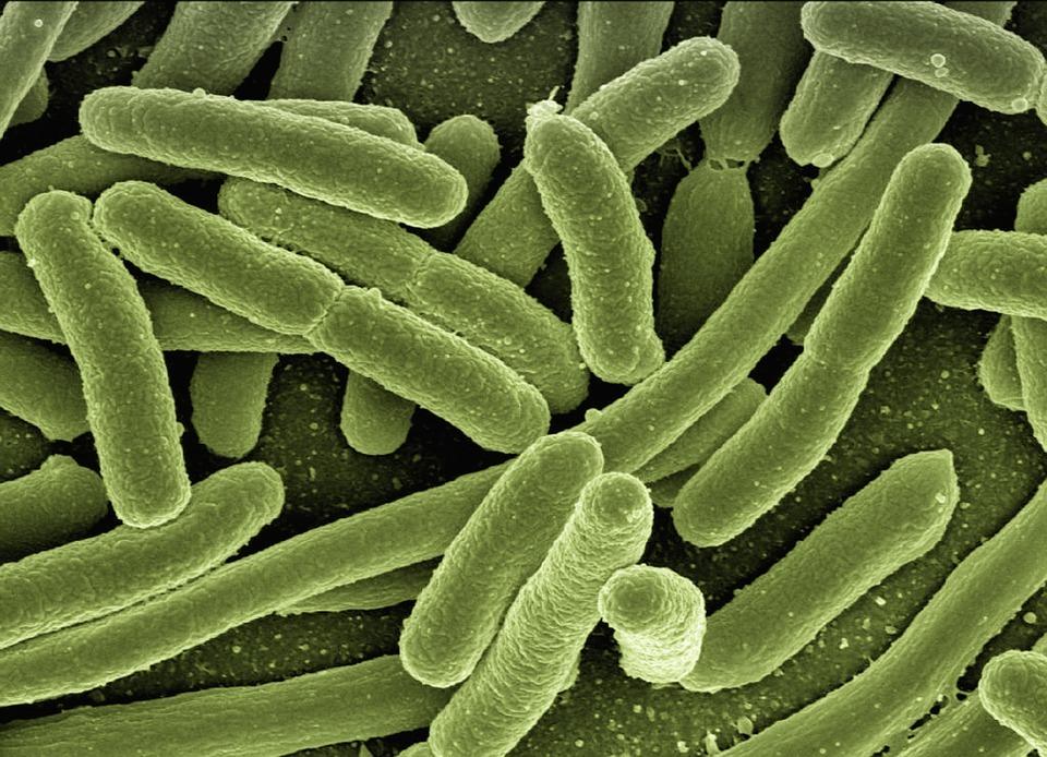 A photo of rod-shaped Escherichia coli bacteria viewed under a microscope.